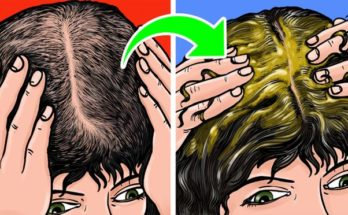9 ways to grow hair naturally and forget about receding hairline