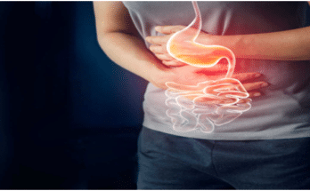 Diet for gastritis of the stomach