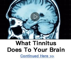 Synapse for tinnitus